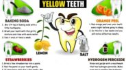 yellow-teeth2